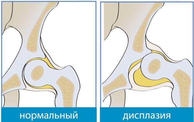 Артрит запястного сустава лечение